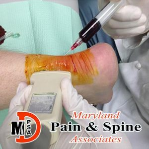 Bursitis & tendon injections